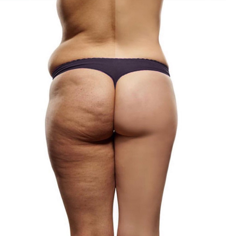 Toning and Cellulite Reduction