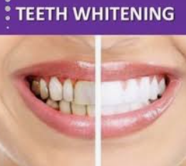 20 Minute Teeth Whitening