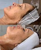3 facials sessions.jpg