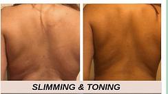 Back  Slimming.png