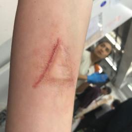 Prospetic makeup - Subdermal implant