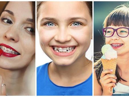 ¿Hasta qué edad puedo usar frenillos? Por la Dra. Marianne Rupitsch, Ortodoncista.