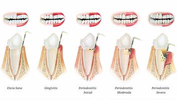 periodontitis  .png