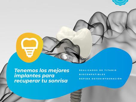 Los Implantes Dentales: La Sustitución De Un Diente Permanente A Considerarse