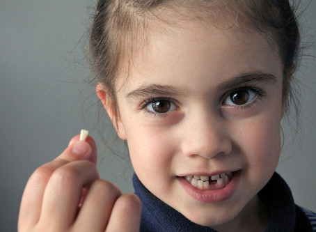¿Por qué pueden perderse los dientes?