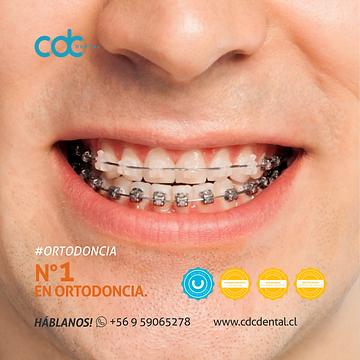n1 en ortodoncia .png