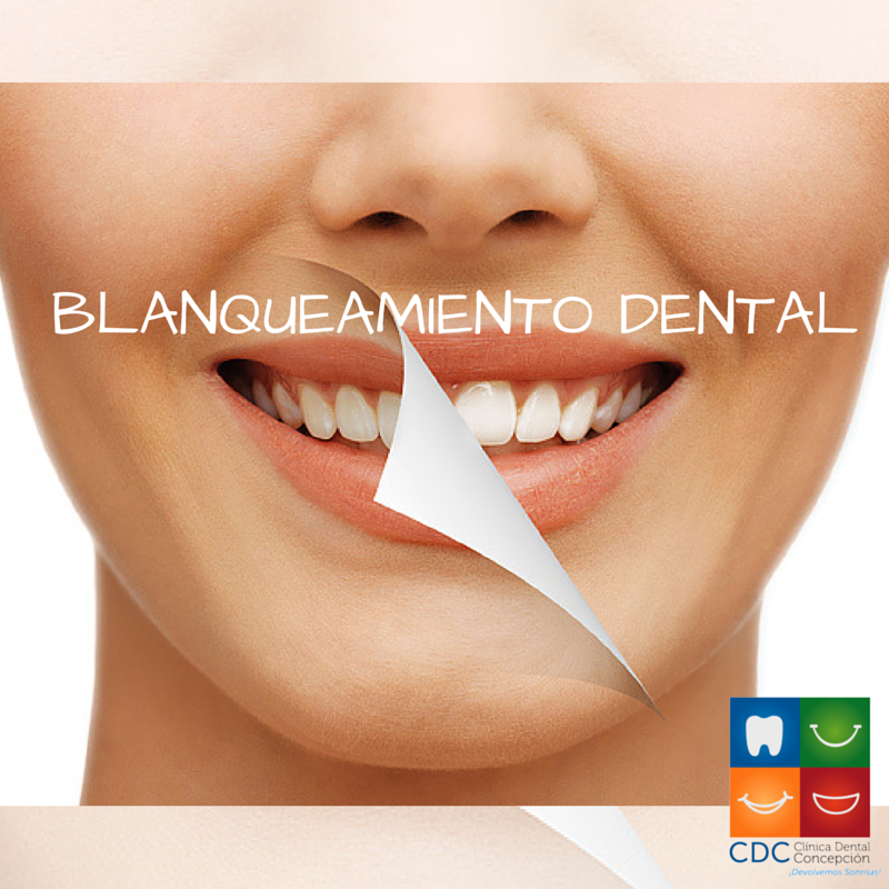 Blanqueamiento Dental.png