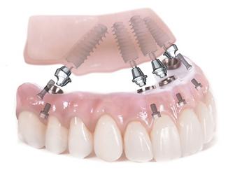 Protesis sobre implante.png
