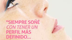 Rinomodelación - Mejora la forma de tu nariz sin cirugía.