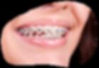 Ortodocia Concepcion, ortodoncia valdvia, ortodoncia chillan,ortodoncia talcahuano,ortodoncia los angeles, frenillosng