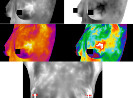 What does a TH5 thermogram look like?