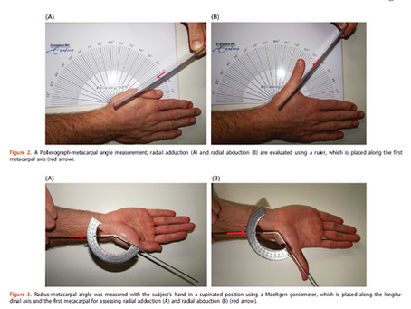 Freely available Pollexograph most reliable angle-based method for measuring thumb radial abduction
