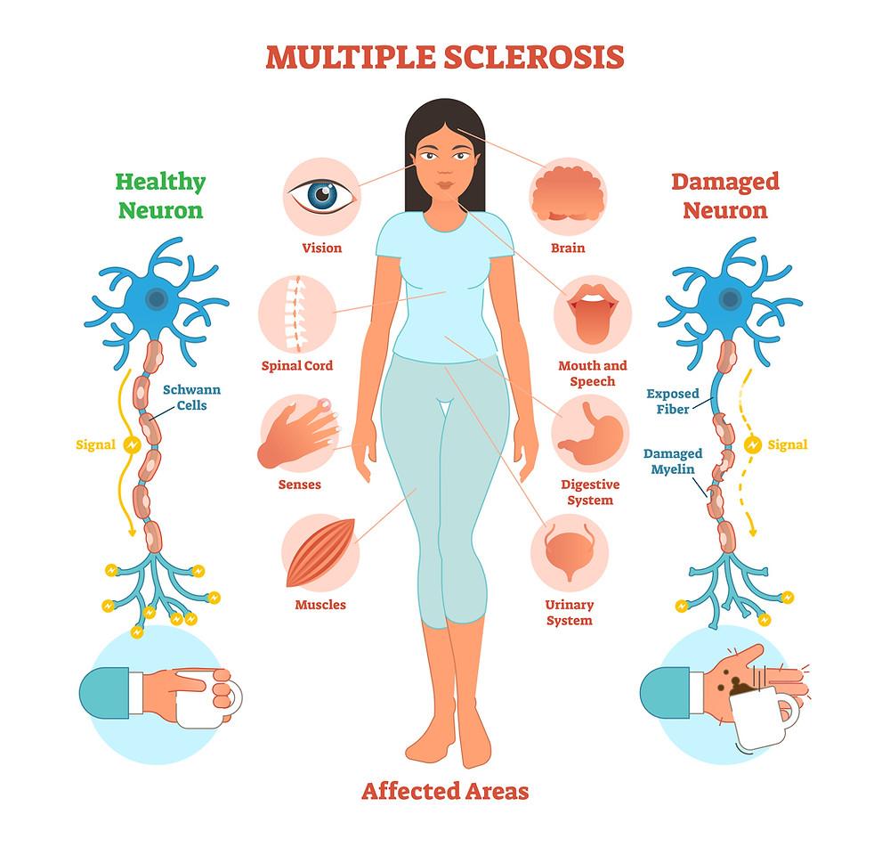 Multiple Sclerosis Symptoms