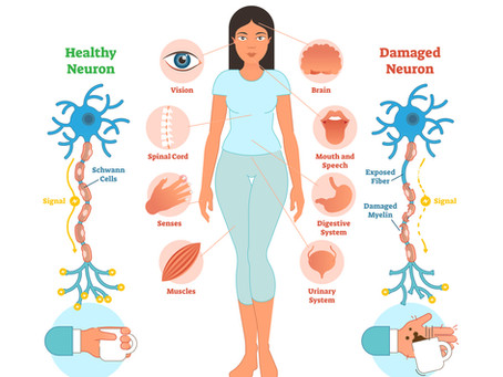 What Are the First Symptoms of Multiple Sclerosis?