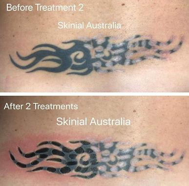 détatouage sans laser avant et après traitement avec méthode Skinial Gradignan Bordeaux Arcachon Aquitaine