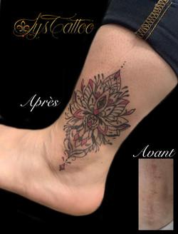 tatouage artistique camouflage cicatrices à Bordeaux