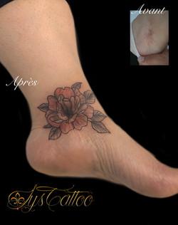 tatouage artistique pour camoufler une cicatrice à Bordeaux