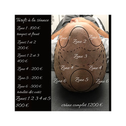 tarif tatouage médical camoufler une perte de cheveux à Bordeaux