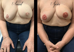 tatouage médical sur cicatrices aréoles mammaire à Bordeaux