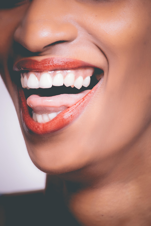 30 min  Teeth Whitening