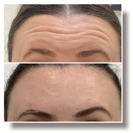 Forehead Lines-before&after