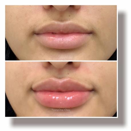 Lip Filler before&after