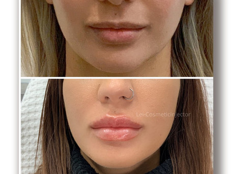 ❤️Lips to Love ❤️with Lip filler
