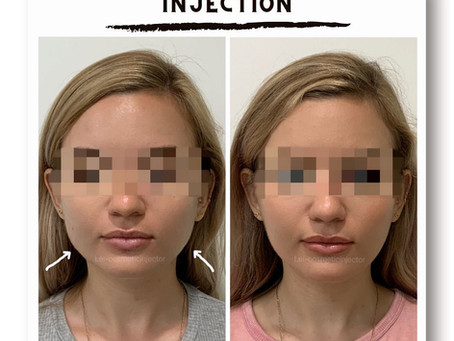 😶Face slimming injection💉 is one of the most popular treatmen
