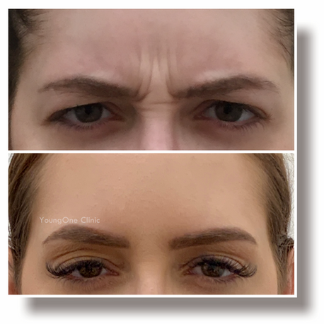 Frown Lines-before&after
