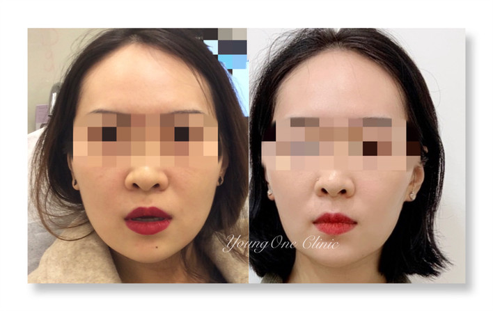 Face Slimming Injection