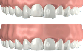 Getting Your Teeth Into Better Shape