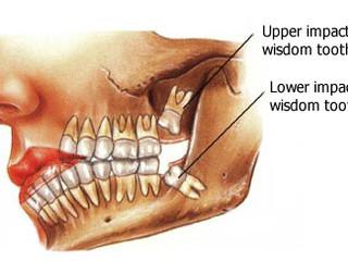Nipping Problem Teeth In The Bud?
