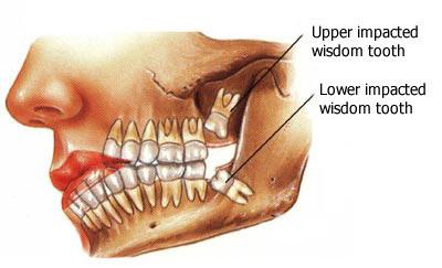 wisdom teeth impacted.jpg