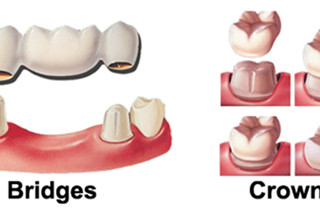 LIFELONG CARE FOR DENTAL RESTORATIONS