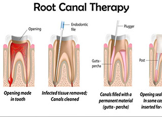 THE FUTURE OF ROOT CANAL TREATMENT?