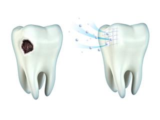 Rebuilding Tooth Enamel
