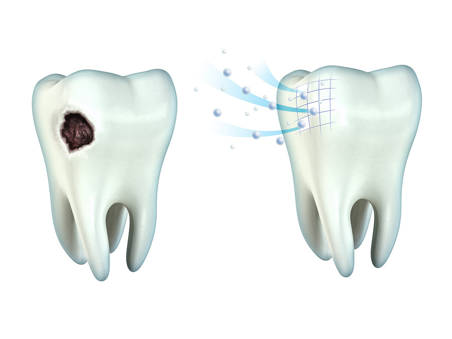Tooth Remineralization.jpg