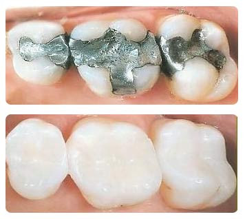 composite-resin tooth-colored.jpg