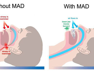 ADVANCED SLEEP APNEA TREATMENT