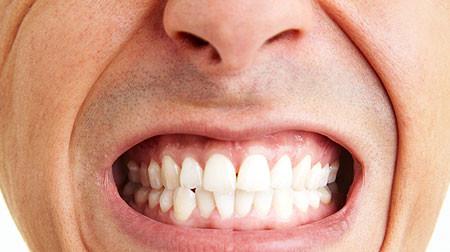 dental_health-teeth_grinding.jpg