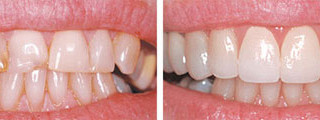 SIMPLE FIX FOR CROOKED TEETH