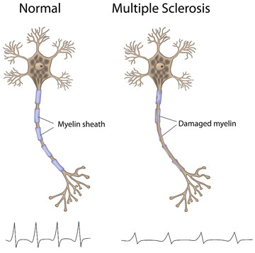 Acupuncture for Multiple Sclerosis