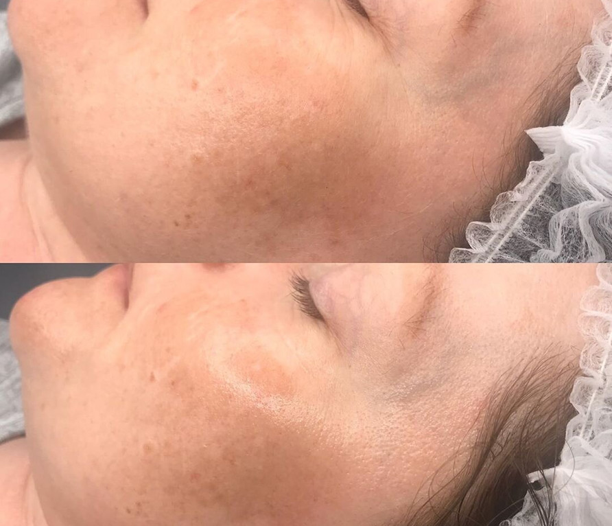 rejuvin8ltd_Facial+today+finished+with+2