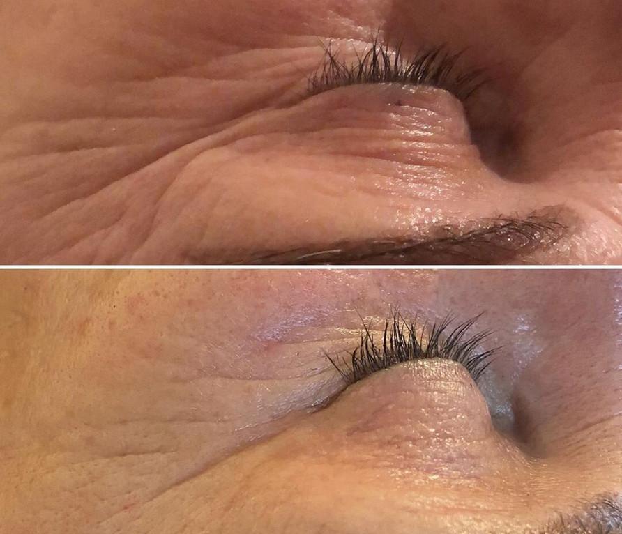 lizziecbeauty_7x30min+treatments_red_nir