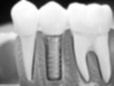 Implantología Rodriguez Solucions Dentals