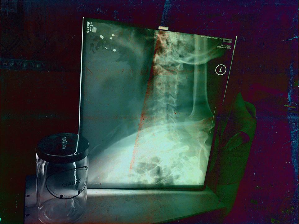 HauntHorror X-ray