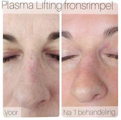 Plasma 4 voor en na.jpeg