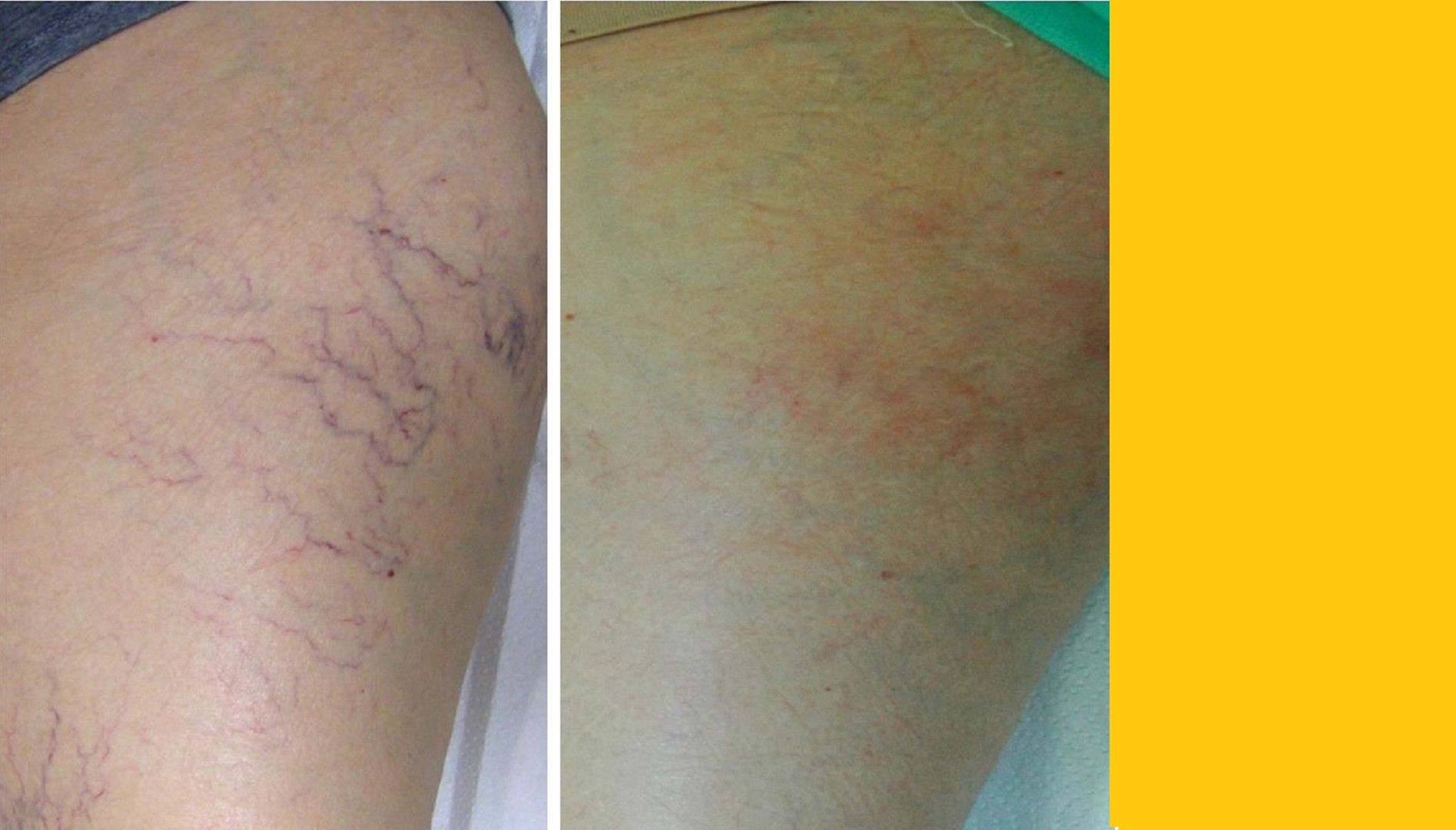 Laser leg / Face Vein Removal - CYNOSURE ELITE +