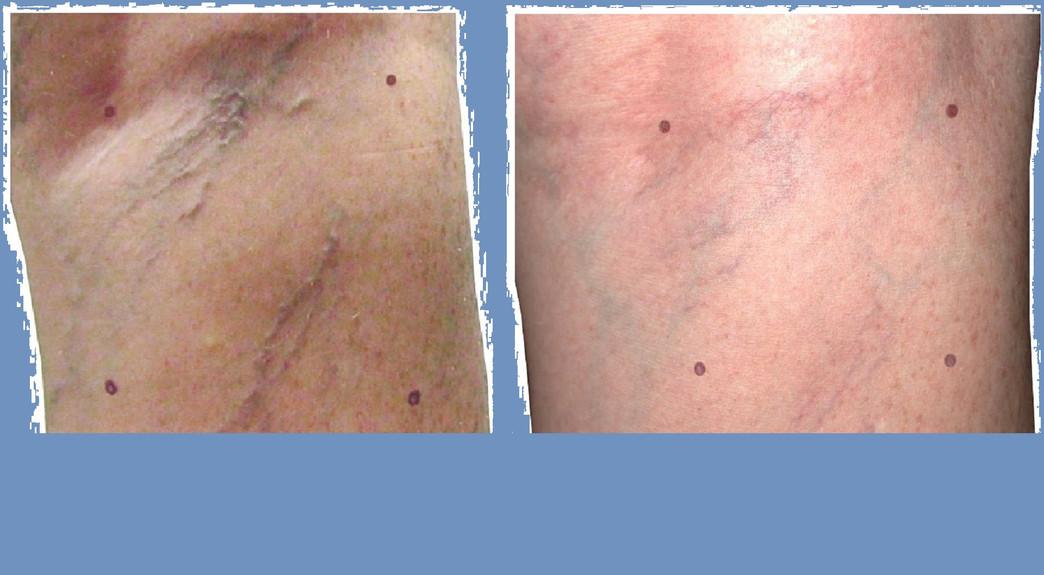 Laser leg / Face Vein Removal - CYNOSURE ELITE +