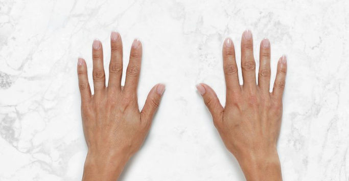Gina-Hands-Clinical-Before-830x430.jpg